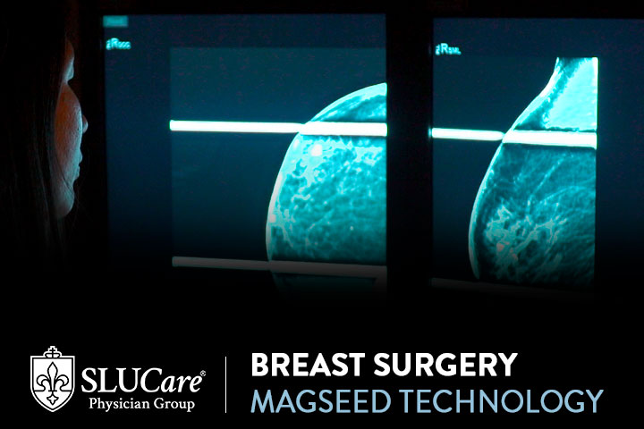 Magseed Technology for Breast Cancer Surgery