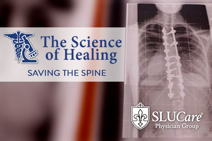 KMOV The Science of Healing: Saving The Spine
